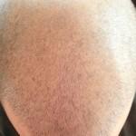 alopecie-annemasse